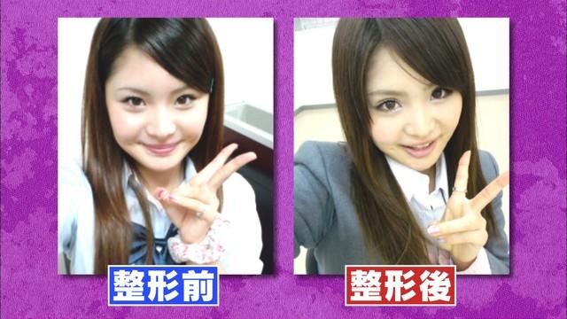 歌恋の整形前と整形後。(c)日本テレビ